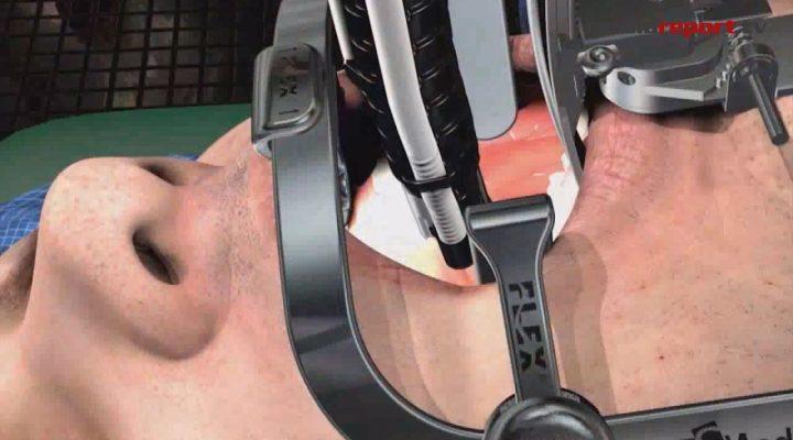 """Sanità, Puglia: il primo robot """"assistente"""" nella chirurgia delle neoplasie della bocca e della gola"""